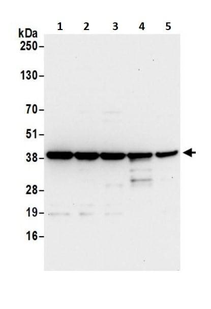 Western blot - Anti-67kDa Laminin Receptor antibody (ab245561)