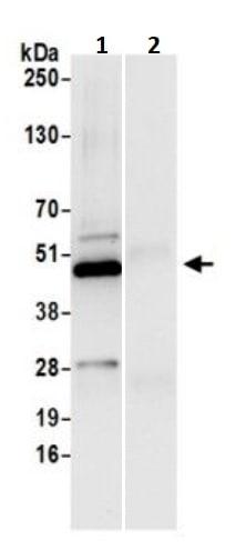 Immunoprecipitation - Anti-Perilipin 3/TIP47 antibody (ab245569)
