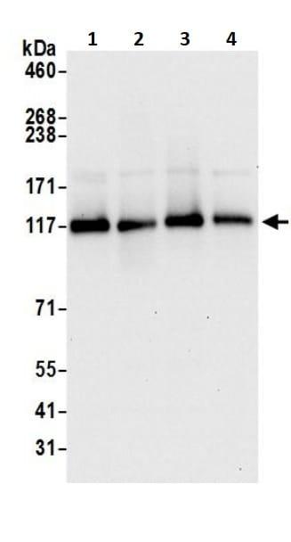 Western blot - Anti-DDB1 antibody (ab245579)