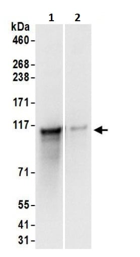 Immunoprecipitation - Anti-Caprin-1 antibody (ab245582)