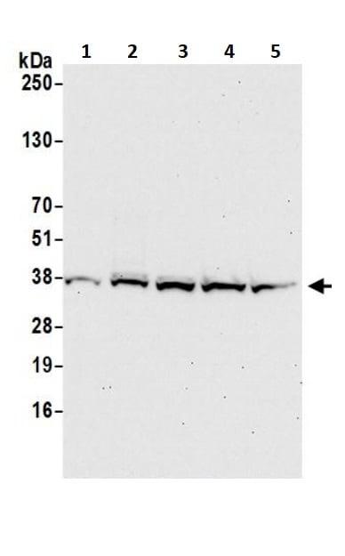 Western blot - Anti-PPP1A/PPP1CA antibody (ab245585)