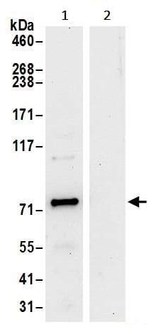 Immunoprecipitation - Anti-N-ethylmaleimide-sensitive fusion protein antibody (ab245595)