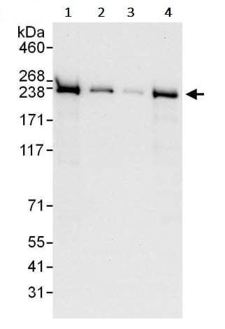 Western blot - Anti-SMCHD1 antibody (ab245598)