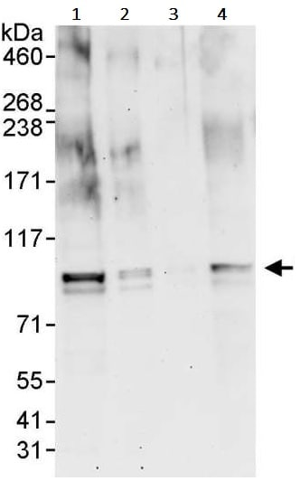 Western blot - Anti-BRD7 antibody (ab245599)