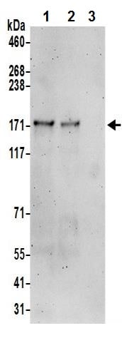 Immunoprecipitation - Anti-MAML2 antibody (ab245611)