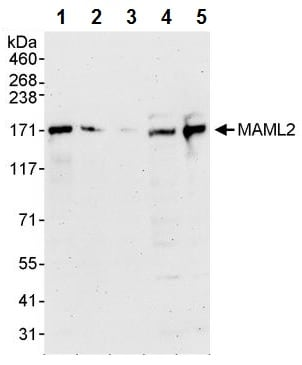 Western blot - Anti-MAML2 antibody (ab245612)