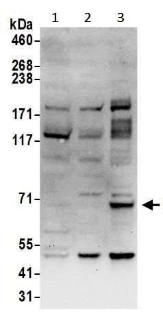 Western blot - Anti-ITK/EMT antibody (ab245629)