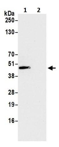 Immunoprecipitation - Anti-OTULIN antibody (ab245652)