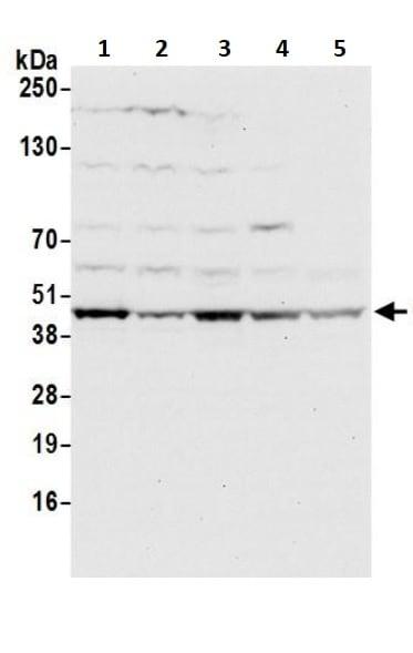 Western blot - Anti-OTULIN antibody (ab245652)