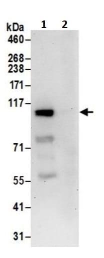 Immunoprecipitation - Anti-USP4 antibody (ab245654)