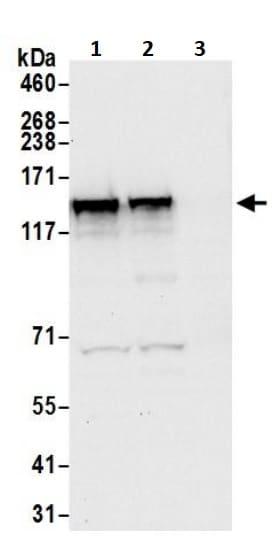 Western blot - Anti-DIAPH3 antibody (ab245660)