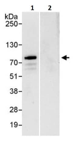 Immunoprecipitation - Anti-ABCF2 antibody (ab245663)