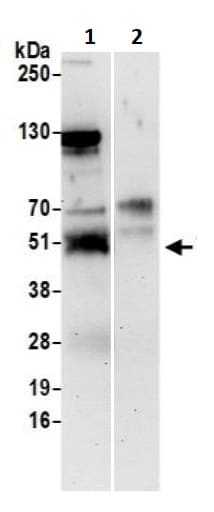 Immunoprecipitation - Anti-TRAF4 antibody (ab245666)
