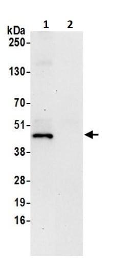 Immunoprecipitation - Anti-FDFT1 antibody (ab245673)