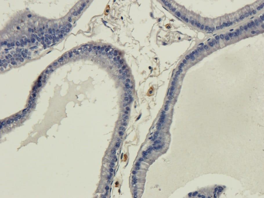 Immunohistochemistry (Formalin/PFA-fixed paraffin-embedded sections) - Anti-Galanin antibody [4B3] (ab245676)