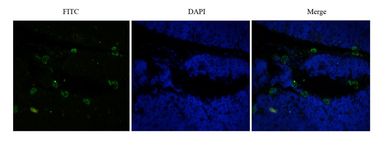 Immunocytochemistry/ Immunofluorescence - Anti-CD52 antibody [Campath-1H] (ab245681)