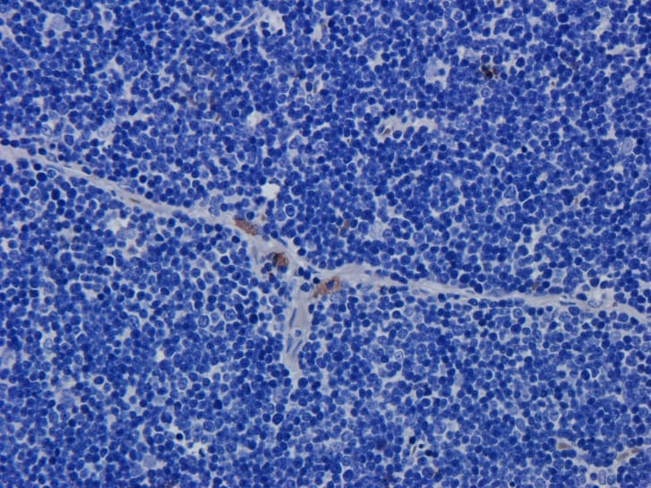 Immunohistochemistry (Formalin/PFA-fixed paraffin-embedded sections) - Anti-CD52 antibody [Campath-1H] (ab245681)