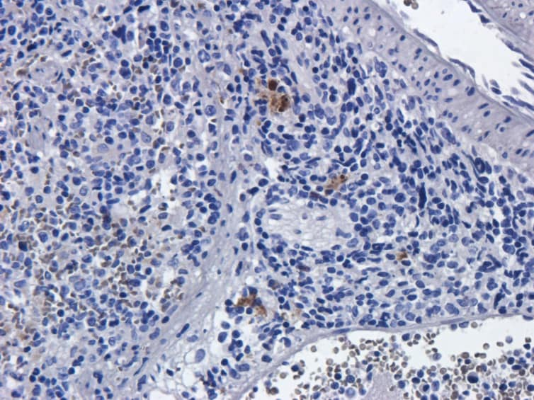 Immunohistochemistry (Formalin/PFA-fixed paraffin-embedded sections) - Anti-IL-2 Receptor alpha antibody [Basiliximab] (ab245687)