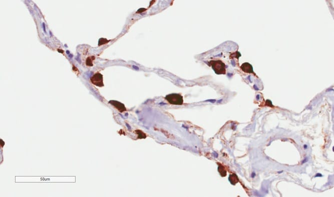 Immunohistochemistry (Formalin/PFA-fixed paraffin-embedded sections) - Anti-MUC1 antibody [HMFG2] (ab245693)