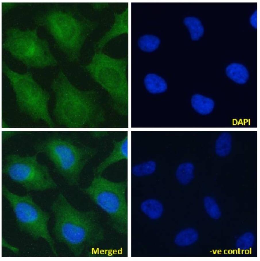Immunocytochemistry/ Immunofluorescence - Anti-Notch2 antibody [B9] (ab245699)