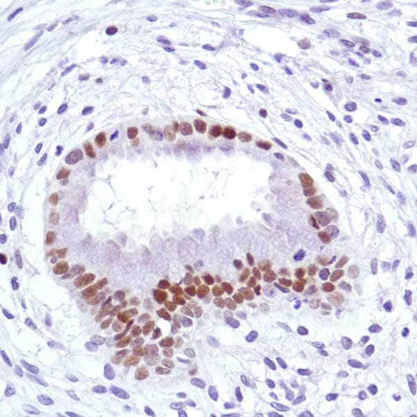 Immunohistochemistry (Formalin/PFA-fixed paraffin-embedded sections) - Anti-Cyclin D3/CCND3 antibody [SP207] - BSA and Azide free (ab245734)