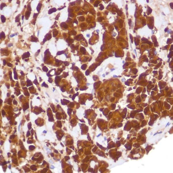 Immunohistochemistry (Formalin/PFA-fixed paraffin-embedded sections) - Anti-Indoleamine 2, 3-dioxygenase antibody [SP260] - BSA and Azide free (ab245737)