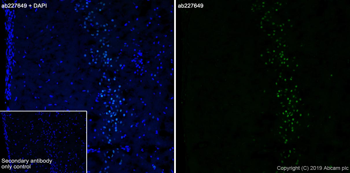Immunohistochemistry (Frozen sections) - Anti-FOXP1 antibody [SP133] - BSA and Azide free (ab245739)