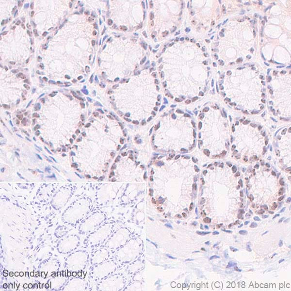 Immunohistochemistry (Formalin/PFA-fixed paraffin-embedded sections) - Anti-Nucleophosmin antibody [SP236] - BSA and Azide free (ab245744)