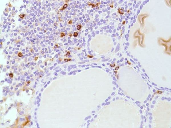 Immunohistochemistry (Formalin/PFA-fixed paraffin-embedded sections) - Anti-Lambda Light chain antibody [SP147] - BSA and Azide free (ab245750)