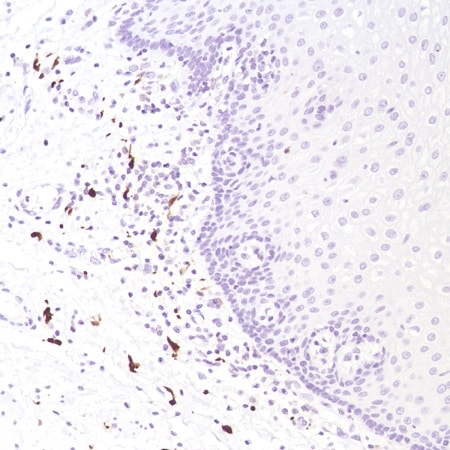 Immunohistochemistry (Formalin/PFA-fixed paraffin-embedded sections) - Anti-Factor XIIIa antibody [SP196] - BSA and Azide free (ab245757)