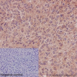 Immunohistochemistry (Formalin/PFA-fixed paraffin-embedded sections) - Anti-DISC1 antibody [EPR14684] - BSA and Azide free (ab245775)