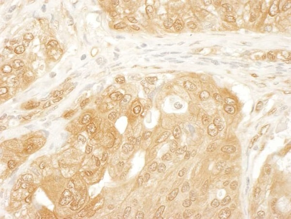 Immunohistochemistry (Formalin/PFA-fixed paraffin-embedded sections) - Anti-YAP1 antibody (ab246007)