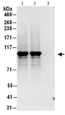 Immunoprecipitation - Anti-STAT6 antibody (ab246008)
