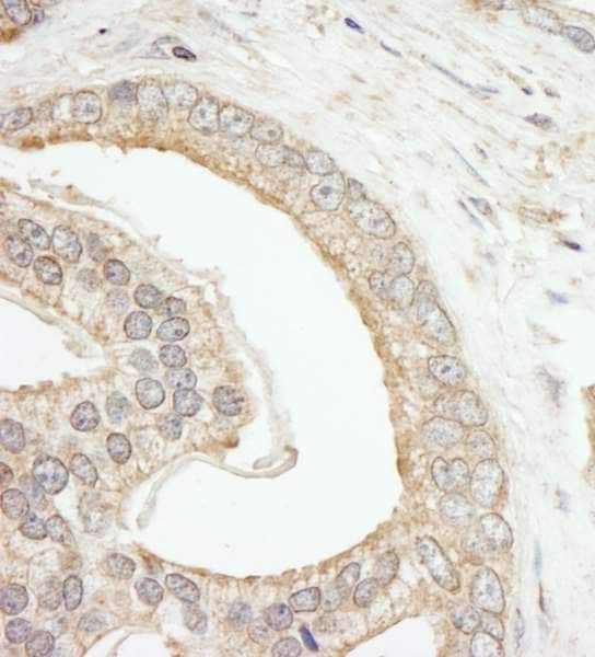 Immunohistochemistry (Formalin/PFA-fixed paraffin-embedded sections) - Anti-ABCF2 antibody (ab246011)