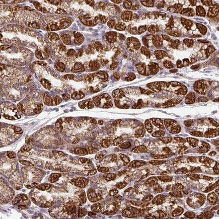 Immunohistochemistry (Formalin/PFA-fixed paraffin-embedded sections) - Anti-TM2D3 antibody (ab246013)