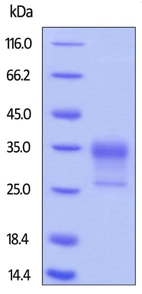 SDS-PAGE - Recombinant human CD32B protein (Active) (Biotin) (ab246026)