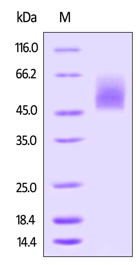 SDS-PAGE - Recombinant human CD86 protein (Active) (Biotin) (ab246058)