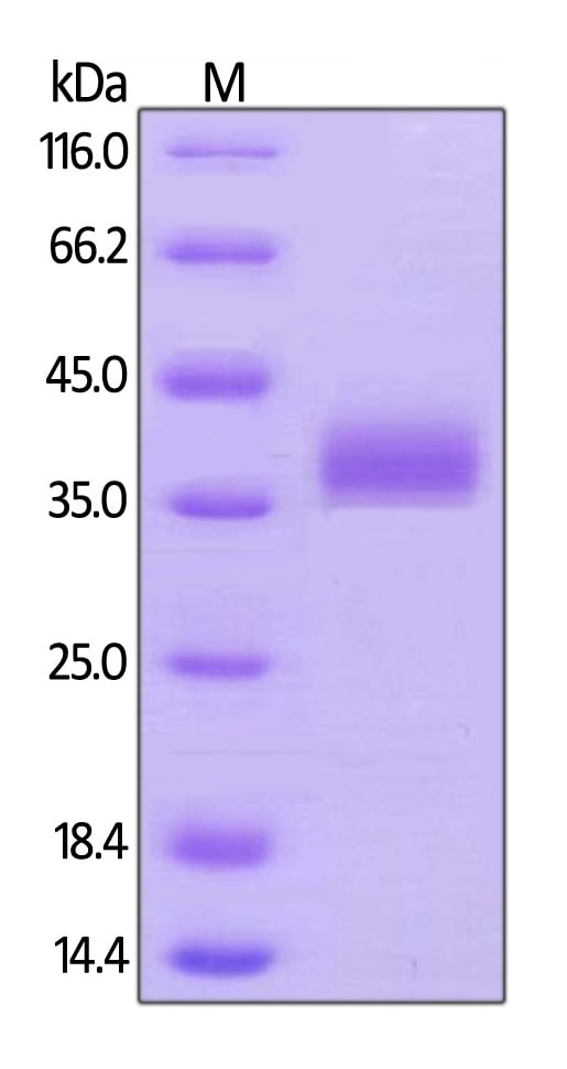 SDS-PAGE - Recombinant Human BTN1A1 protein (Tagged) (Biotin) (ab246064)