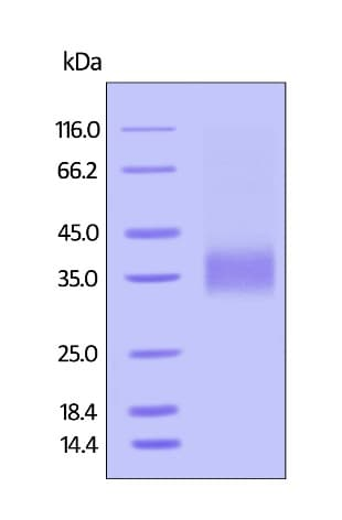 SDS-PAGE -  Human CD32A protein (Active) (ab246082)