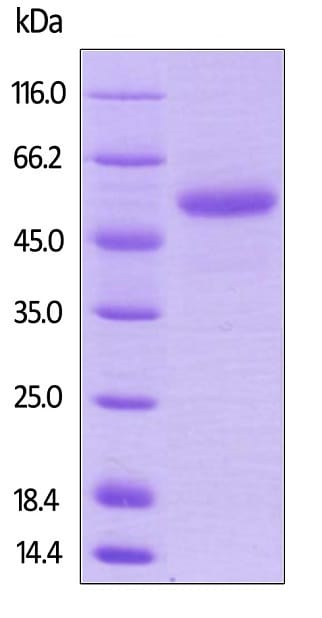 SDS-PAGE - Recombinant human TRAP/CD40L protein (Active) (Biotin) (ab246110)