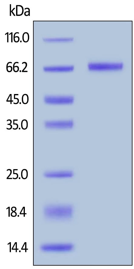 SDS-PAGE - Recombinant human Mesothelin protein (Active) (ab246135)