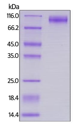 SDS-PAGE -  HIV1 gp120 protein (Active) (ab246147)