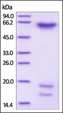SDS-PAGE - Recombinant human PCSK9 (mutated D374 Y) protein (Active) (Biotin) (ab246149)