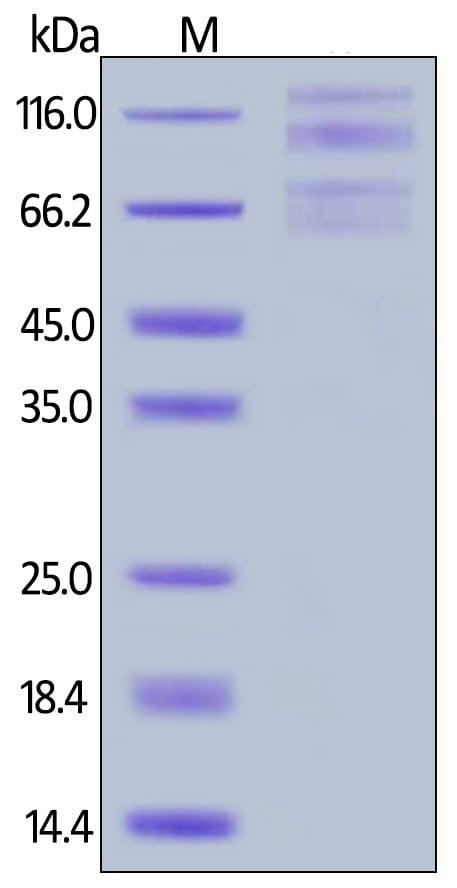 SDS-PAGE - Recombinant Human Integrin alpha 4/CD49D + Integrin beta 7 protein (Tagged) (Biotin) (ab246163)