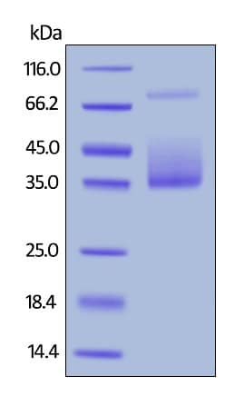 SDS-PAGE - Recombinant human M-CSF protein (Active) (Biotin) (ab246167)