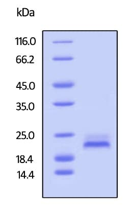 SDS-PAGE - Recombinant human DR5 protein (Active) (Biotin) (ab246172)