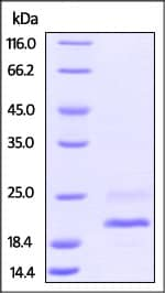 SDS-PAGE - Recombinant mouse TNF alpha protein (Active) (Biotin) (ab246176)