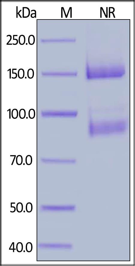 SDS-PAGE - Recombinant human Integrin alpha V + Integrin beta 8 protein (Active) (Biotin) (ab246190)