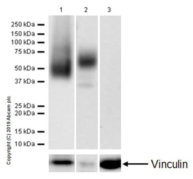 Western blot - Anti-CD16 antibody [EPR22409-124] (ab246222)