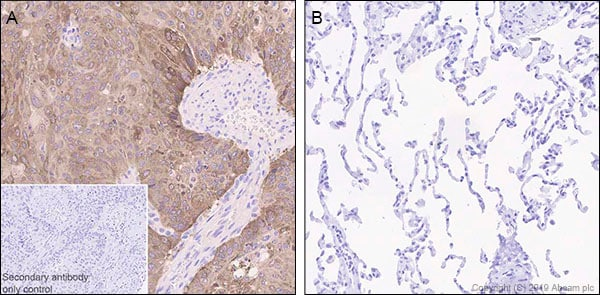 Immunohistochemistry (Formalin/PFA-fixed paraffin-embedded sections) - Anti-LINE-1 ORF1p antibody [EPR22227-6] - BSA and Azide free (ab246317)